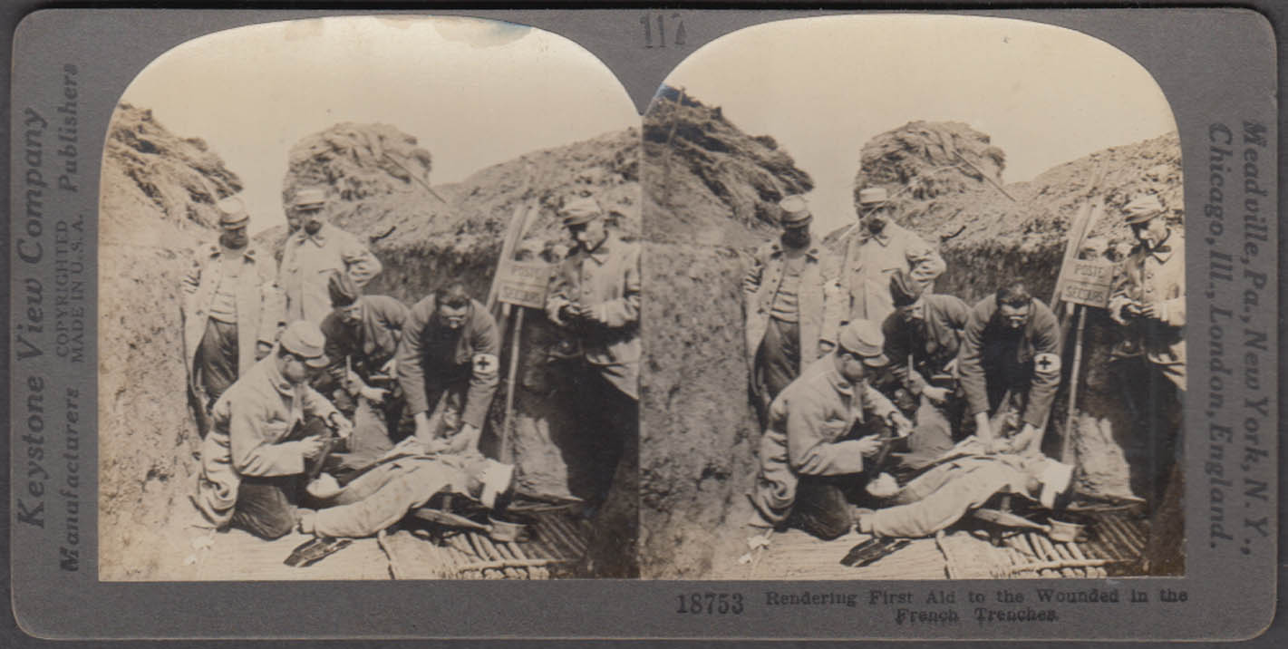 WWI stereoview First aid applied to wounded French trenches ca 1914
