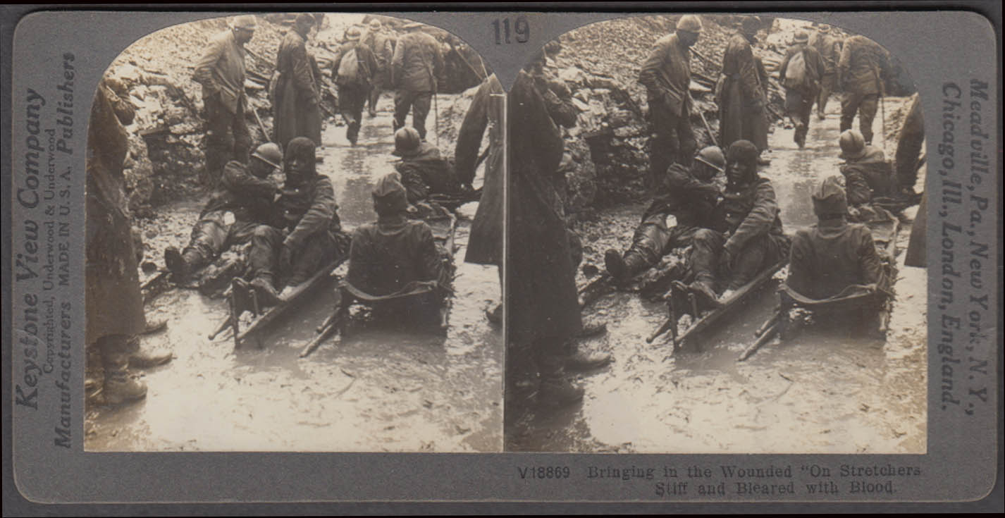 WWI stereoview AEF wounded on stretchers in trenches ca 1915