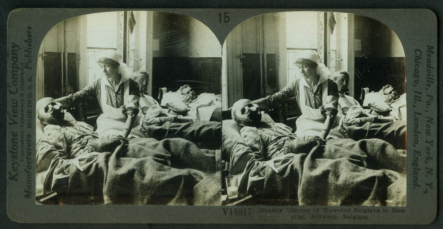Bandaged Belgians in Antwerp Hospital World War I stereoview 1918